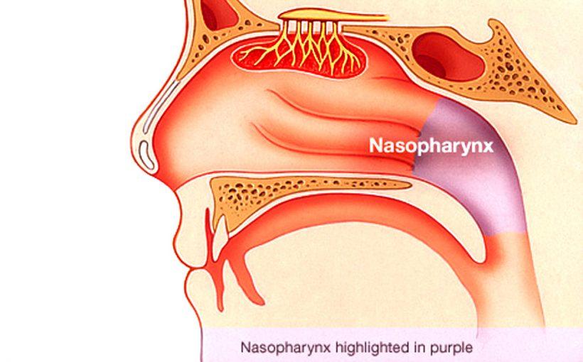 Kanker Nasofaring, Jenis Kanker yang Langka