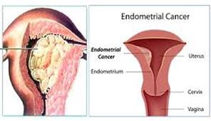 kanker-endometrium