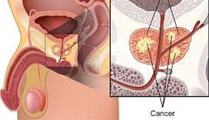 kanker-prostat-2