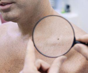Cara Mudah Deteksi Kanker